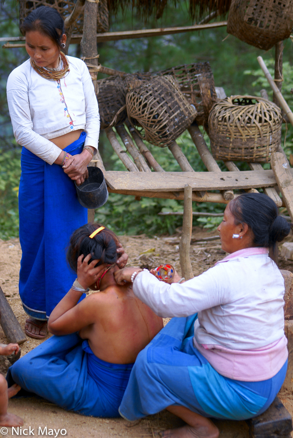 Burma,Lahu,Massage,Shan State, photo